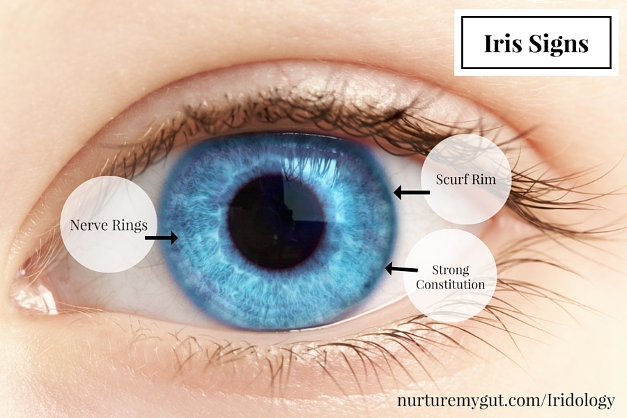 iridology readings and markings